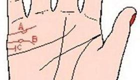 手相婚姻线图解:岛纹手相
