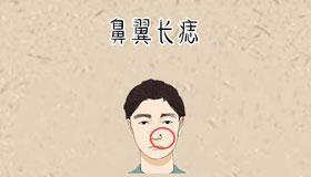 鼻翼两侧长痣代表了什么含义
