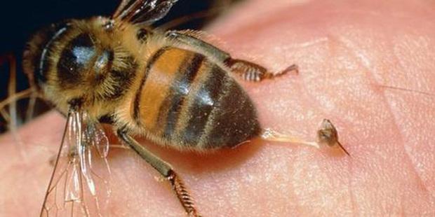 做梦梦到被蜜蜂蛰怎么回事 是好兆头吗